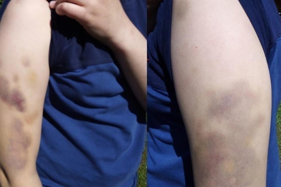 Администрация санатория, где избили подростка, объяснила, что синяки у того появились в результате «неформальной игры»