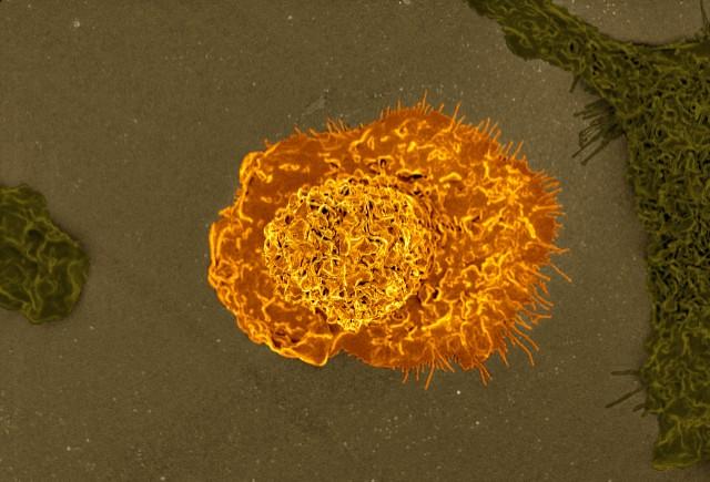 Иммунные клетки работают под давлением