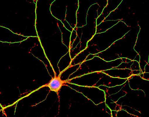 Болезнь Альцгеймера не даёт нейронам общаться друг с другом