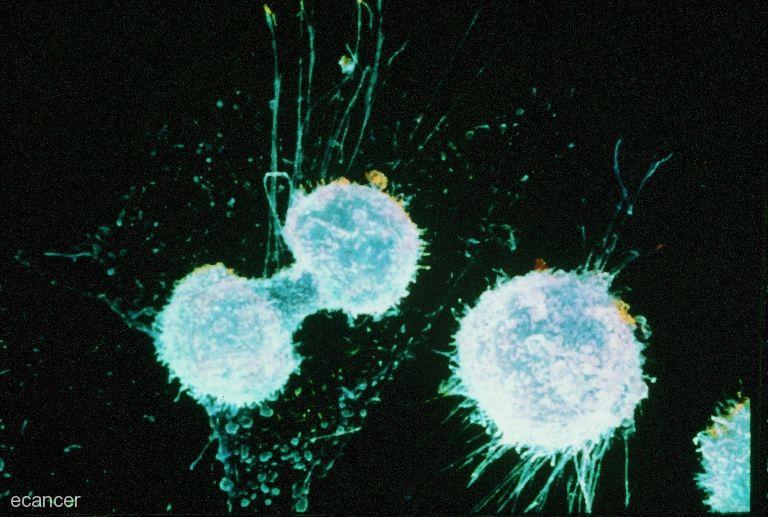 Раковые клетки мутируют против лечения