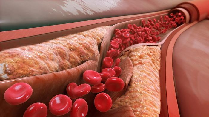 Трубки из бактериальных полимеров помогут в лечении атеросклероза