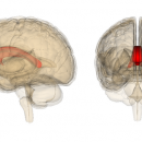 Сотрясение нарушает информационные пути мозга