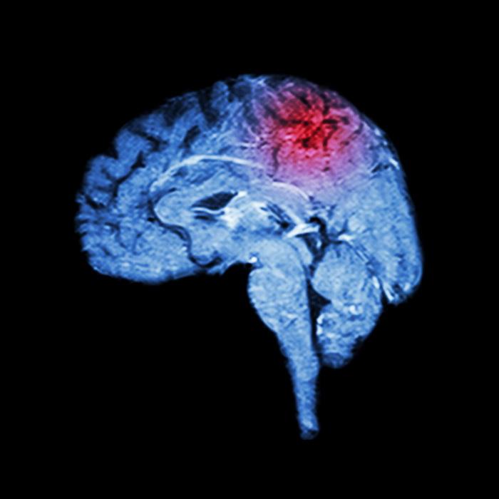 Мозг стареет из-за воспаления