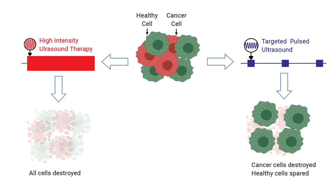 Ультразвук нацелен на раковые клетки