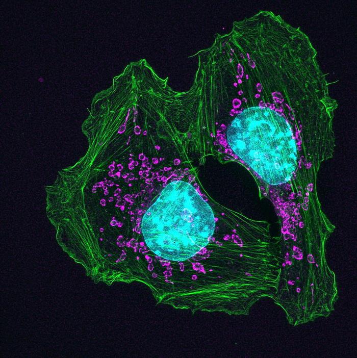 Нервы помогают раковой опухоли расти