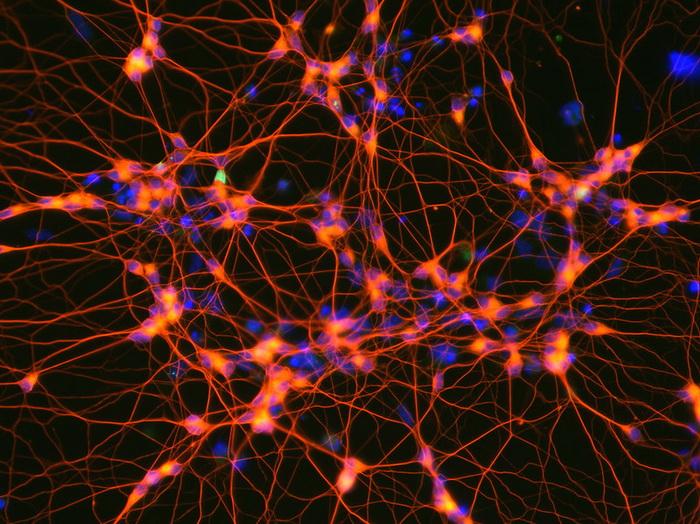 Стволовые клетки против инсульта