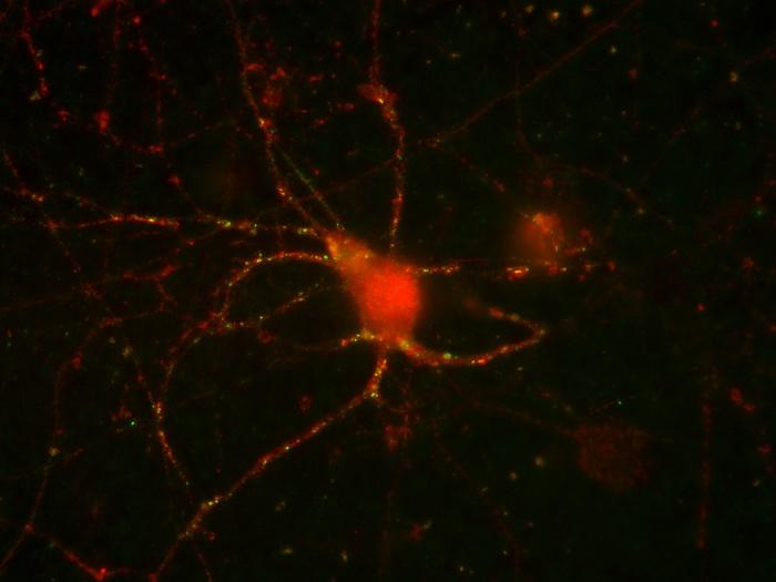 Нейродегенеративный белок включает клеточную защиту
