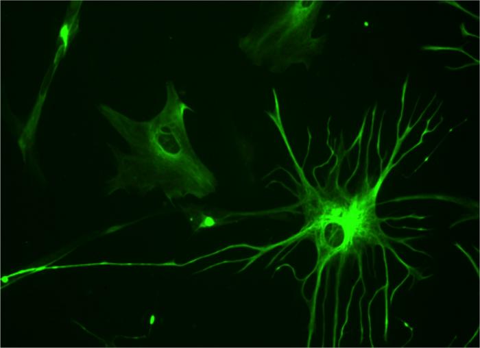 Вспомогательные клетки мозга тормозят болезнь Паркинсона