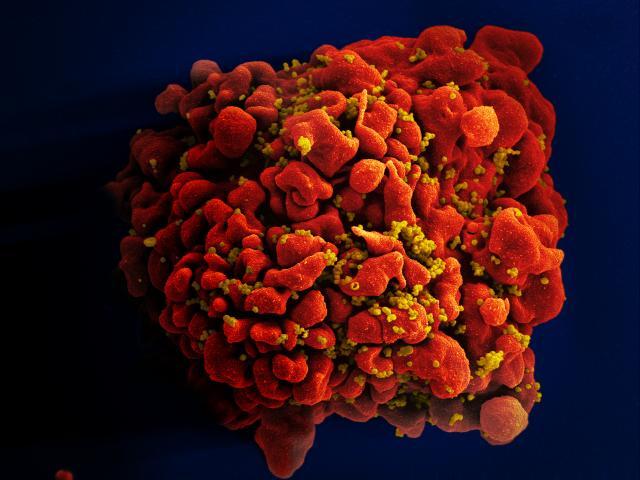 Антибиотик помогает иммунитету увидеть ВИЧ