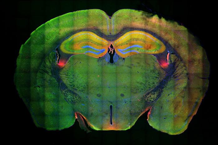 Память связали с нейронными хромосомами