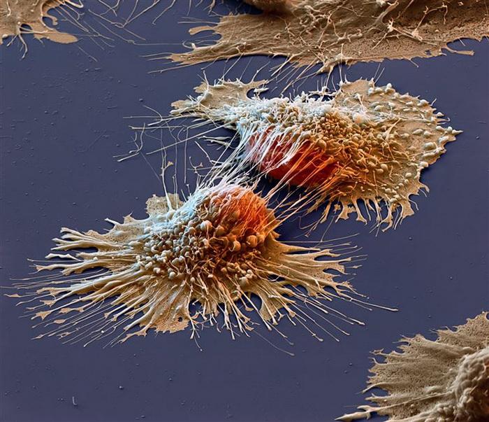 Раковые клетки метастазируют с чужой помощью