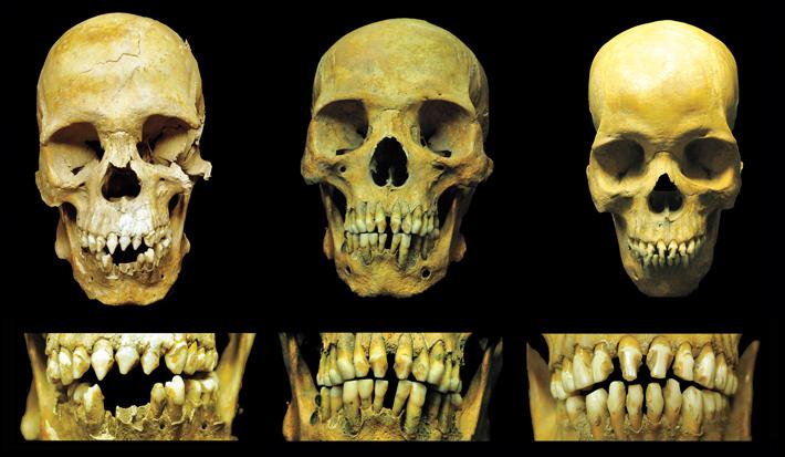 Top-Ten-Mexico-City-Skulls-Teeth-Combo.jpg